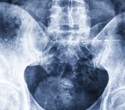 New imaging test detects prostate cancer much better than any other tests in use today