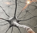 Researchers develop method to predict disease activity in multiple sclerosis