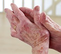 People diagnosed with psoriatic arthritis often left with little or no support for emotional problems