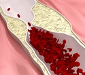 Synthetic nanoparticle can light up and treat atherosclerotic plaques