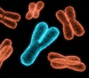Abnormal breakage of chromosomes in white blood cells triggers aggressive form of ALL