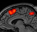 Neuroimaging study identifies four mental stages during math problem solving