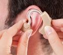Innovative noise reduction technology SEDA helps tackle babble signals from cochlear implants