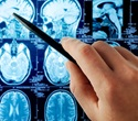 Study highlights possible reasons for MS misdiagnosis