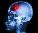 Study provides more insights into abusive head injury in small children