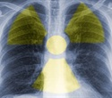 New molecular breast imaging gives better image quality with reduced radiation dose