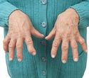 Study finds differences in hospitalization trends for gout and rheumatoid arthritis
