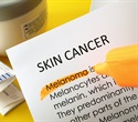 Aged tumor cells in melanoma behave in a different way than younger tumor cells