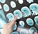 Benzodiazepine-like drugs linked to increased stroke risk among Alzheimer's disease patients