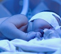 Accurate test for jaundice could lead to effective treatment in premature newborns