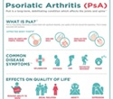 No progression in joint damage in 84% of psoriatic arthritis patients