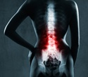 Risk of blindness from spinal-fusion surgery has declined, study shows