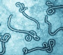 Ebola diagnosis now possible within minutes