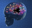Anticholinergic medications do not affect cognitive performance in PD patients