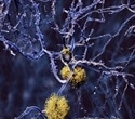 Monoclonal antibody removes brain amyloid plaques in patients with Alzheimer's disease