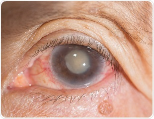New approach to treating cataracts uses pharmacological chaperone