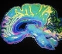 Study suggests structural changes in the brain help cope with stressful situations