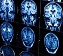 Right brain predicts post-stroke speech recovery