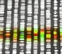 Adding DNA sequencing to newborn screenings may increase early diagnosis of cystic fibrosis