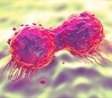Researchers identify protein that helps cancer cells to spread