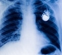 BHVH cardiologists implant investigational cardiac pacemaker the size of multivitamin