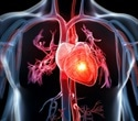 Study shows impaired sexual health and function common after heart attacks