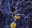 Alzheimer's research raises questions on the role of infection