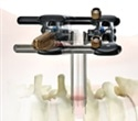 Research findings on K2M's RAVINE® lateral access system to be presented at SpineWeek 2016