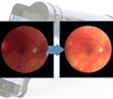 Volk iNview portable fundus camera now compatible with iPhone SE