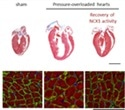 NCX1 protein could help prevent progression of heart failure