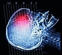 Experimental PET tracer can diagnose concussion-related brain degeneration in living person
