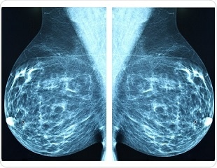 Boosting the power of MRI to detect breast cancer metastases