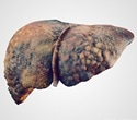 Study provides insights into CPEB4 gene and fatty liver disease