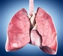 Preserving donor lungs for longer time may provide greater flexibility during transplants